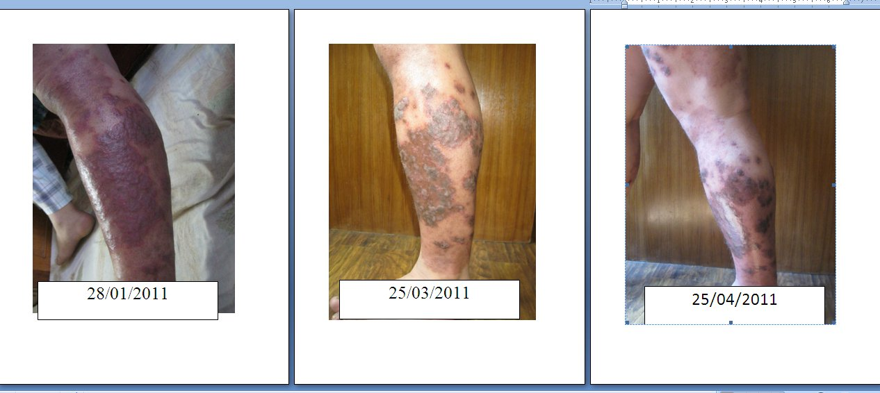 A patient describes her 20-year search for a psoriasis treatment 1