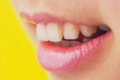 Cara Mengatasi Bau Mulut dan Kuning Gigi