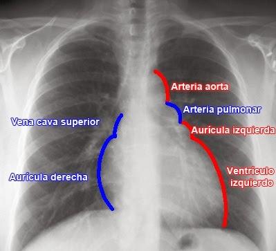 Tecnicos Radiologos: Todo sobre la Obtención y Lectura de ...