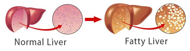 Obat Tradisional Alami Liver Bengkak