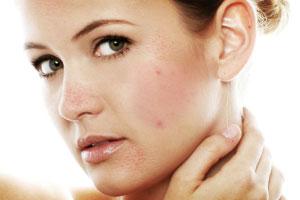 p-adult-acne-تعقيم وتنظيف الهاتف المحمول يمنع ظهور حب الشباب !!!