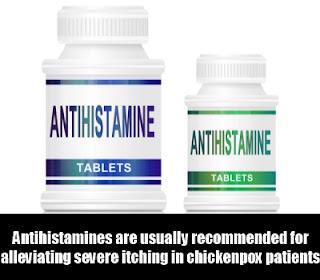 Pesakit boleh diberikan ubat antihistamine bagi mengurangkan rasa kegatalan akibat chicken pox