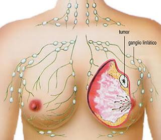 Pengobatan Ampuh Penyakit Kanker, Obat alami untuk Mengobati Kanker Payudara, Pengobatan Alami sakit Kanker Payudara