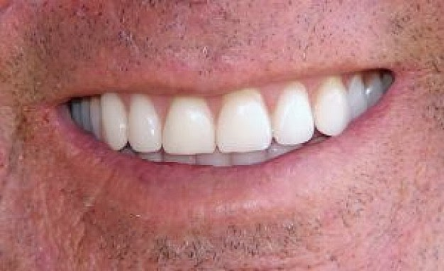 The Features Of Bleaching Your Teeth