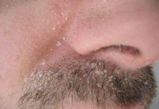 Maladie de Dermite séborrhéique - Maladies de Peau