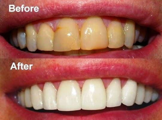 Cara Terbaik Memutihkan Gigi Dengan Bahan Alami