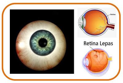 Gb. Fungsi Retina Pada Mata & Operasi Retina Mata Lepas
