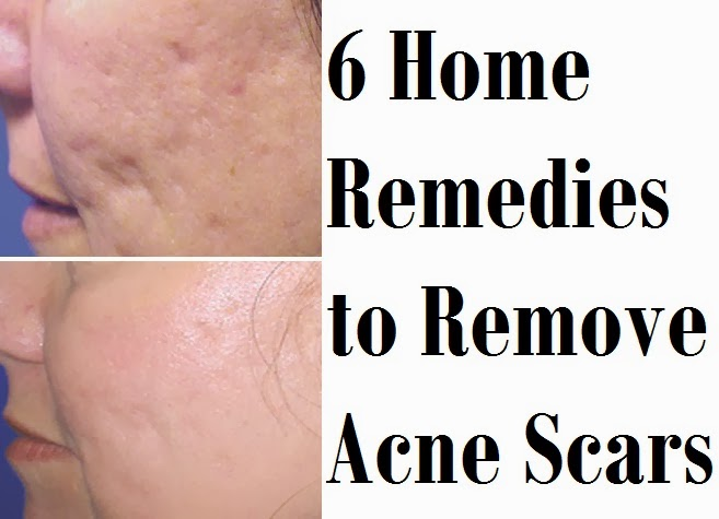 Natural Way To Get Rid Of Acne Scars On Back