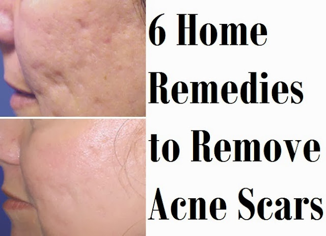 6 Home Remedies to Remove Acne Scars