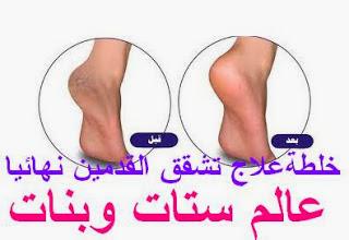 تبيض القدمين بسرعه - تبيض القدمين في اسبوع - تبيض القدمين واليدين علاج تشقق القدمين بالاعشاب