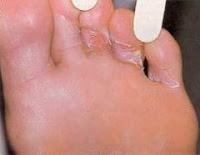 Articulo que muestra como eliminar los hongos de los pies