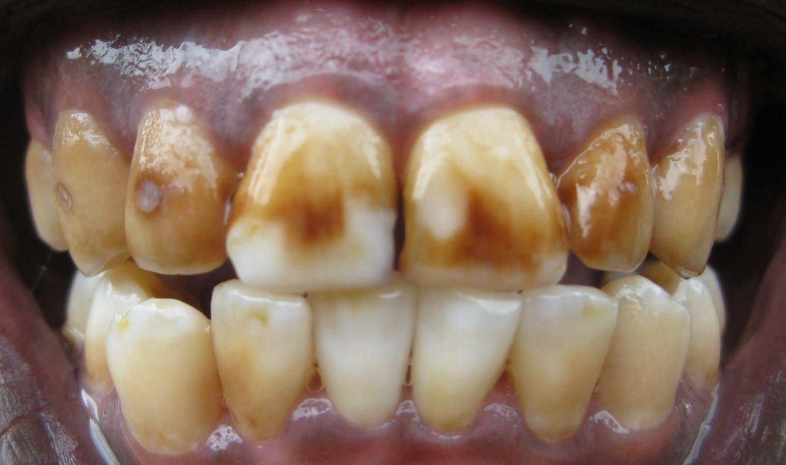 Чем очистить кариес с зубов в домашних условиях