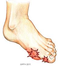 Gout Set
