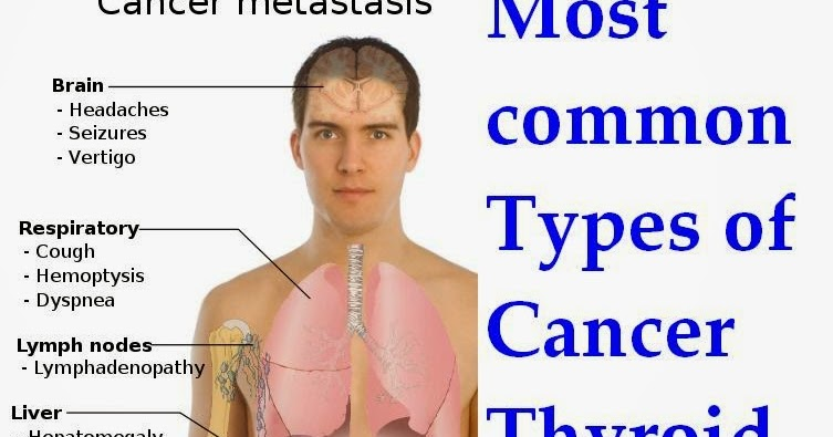 the most common kinds of cancer There are different types of pancreatic cancer the most common type is pancreatic ductal adenocarcinoma pancreatic cancers are divided into two main groups.