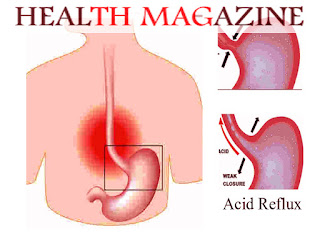 Can Acid Reflux Cause Stomach Pain?