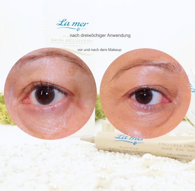 Ergebnis nach drei Wochen Augenpflege