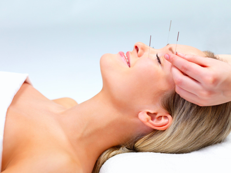 Acupuncture In Boca Raton