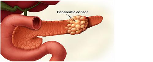 Sembuh Dari Kanker Pankreas Stadium 4