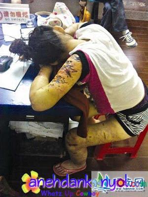 Karena Cinta, Gadis Ini Menderita Ratusan Sayatan Pisau  | Topik Terbaru