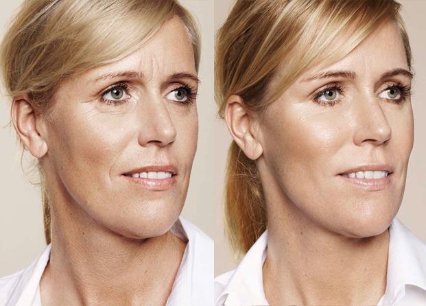 Restylane Skinboosters antes y después