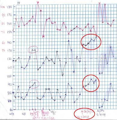 elevated blood pressure chart due to lack of sleep