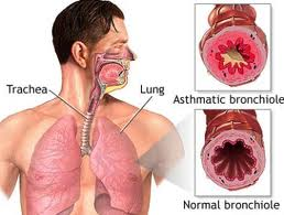 Asthma, Part 2: Natural Remedies – 12/29/11