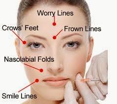 Njerëzit paragjykojnë të paralizuarit në fytyrë dhe i perceptojnë si të palumtur