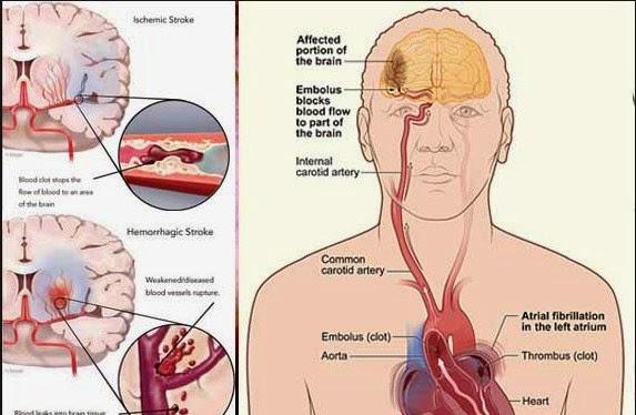 Cara Pencegahan Penyakit Stroke