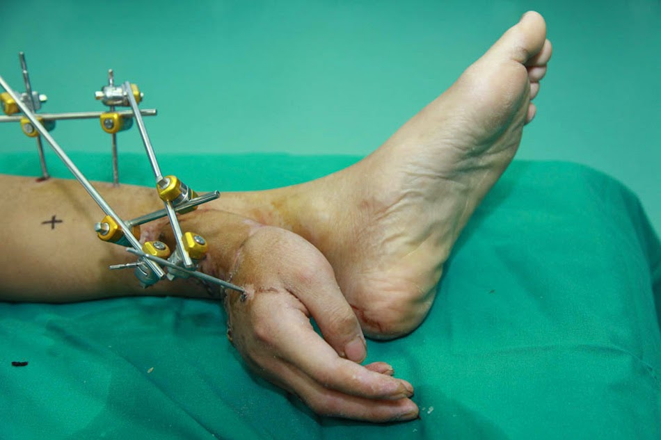 Severed hand attached to leg