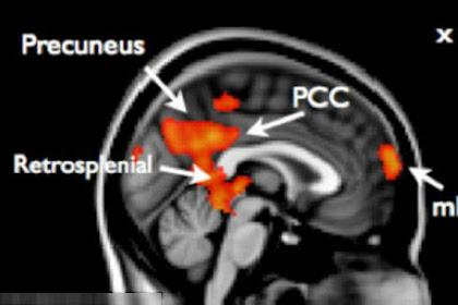 Ini Hasil MRI Otak Remaja yang Memberontak