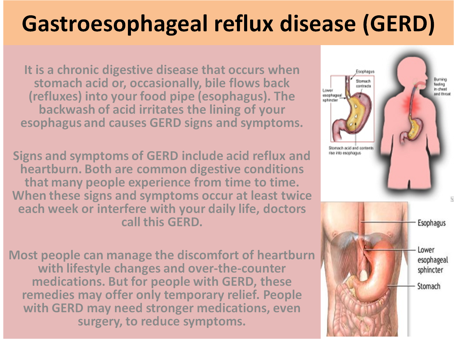 gastroesophageal reflux Gastroesophageal reflux disease (gerd) occurs when stomach acid frequently  flows back into the tube connecting your mouth and stomach.