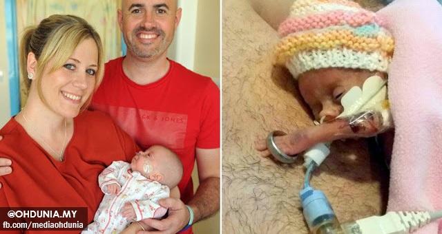 Menakjubkan!.. Tangan Bayi Tak Cukup Bulan Hanya Sebesar Cincin