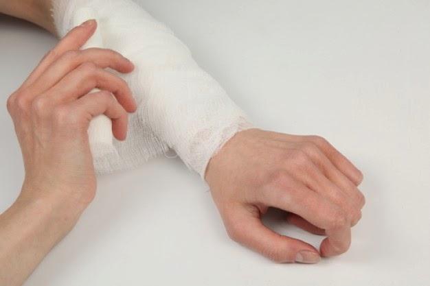 pembedahan patah tangan
