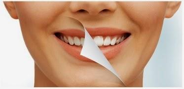 Cara Hilangkan Karang Gigi Secara Mudah Dan Alami Bacadatacom