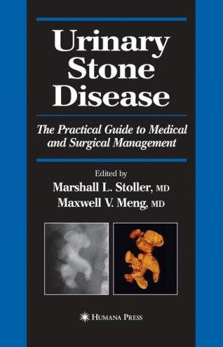 Stoller Hướng dẫn Quản lý Nội-Ngoại khoa Sỏi Tiết niệu