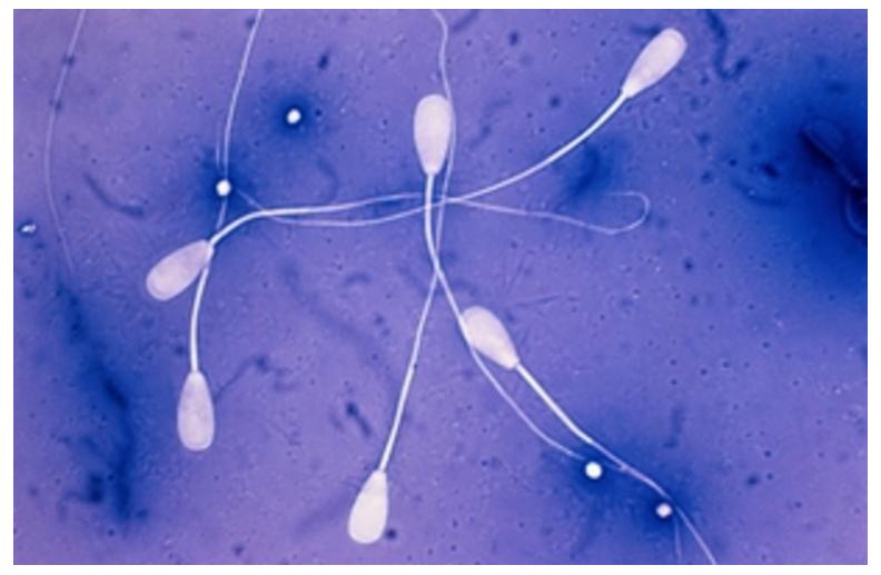agglyutinatsiya-spermi-mozhet-li-oshibatsya