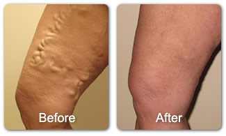 Clearing your unsightly veins