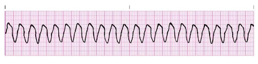 Dr. Smith's ECG Blog: Polymorphic Ventricular Tachycardia Ventricular Tachycardia Rhythm Strip