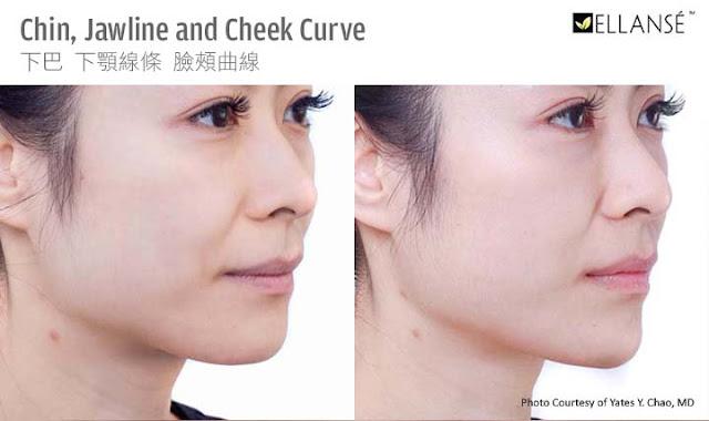 趙彥宇醫師注射示範Ellanse依戀詩臉頰下巴下顎線條塑形