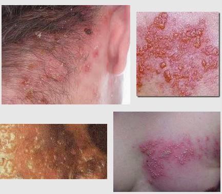 Penyakit Herpes Parah