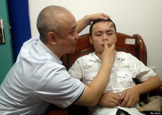 DOKTOR memeriksa hidung asal Xiaolian yang mengalami jangkitan.