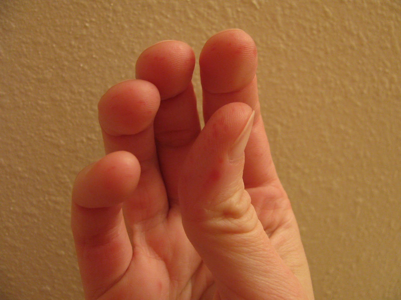 Numbness In Lips Fingers And Toes