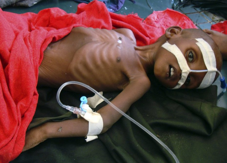 Ahmed Husein, 9 años. Hospital de Banadir, Mogadiscio, Somalia (2011) Foto: Associated Press