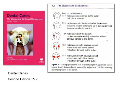 dental caries + research papers Introduction the aims of this study were to assess the prevalence of dental caries and the dmft index, as well as the distribution pattern of pit and fissure sealants on permanent teeth in a portuguese sample of adolescents, and to assess whether the existing usage of sealants and socio-demographic factors are correlated to caries prevalence on the examined sample.