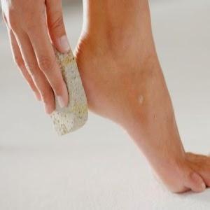 علاج تشقق القدمين نهائيا والتخلص من تشققات كعب القدمين chapped feet