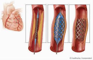 Pembedahan bagi pesakit jantung