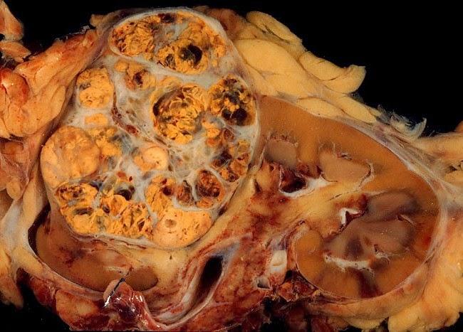 Penyebab Gejala dan Cara mengatasi Kanker Ginjal Perawatan Pengobatan