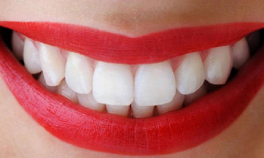 5 Dicas Caseiras Para Clarear Os Dentes