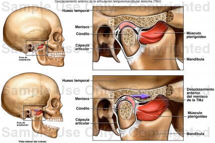 Odontologi@: Trastornos Temporomandubulares - Artrosis en la ATM ...