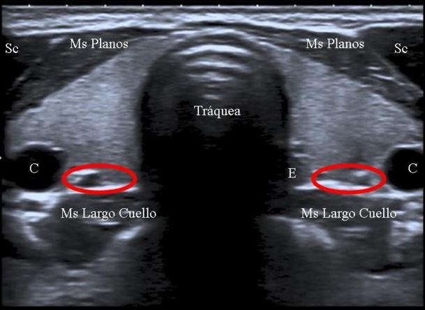 Informe radiológico: Glándula paratiroides
